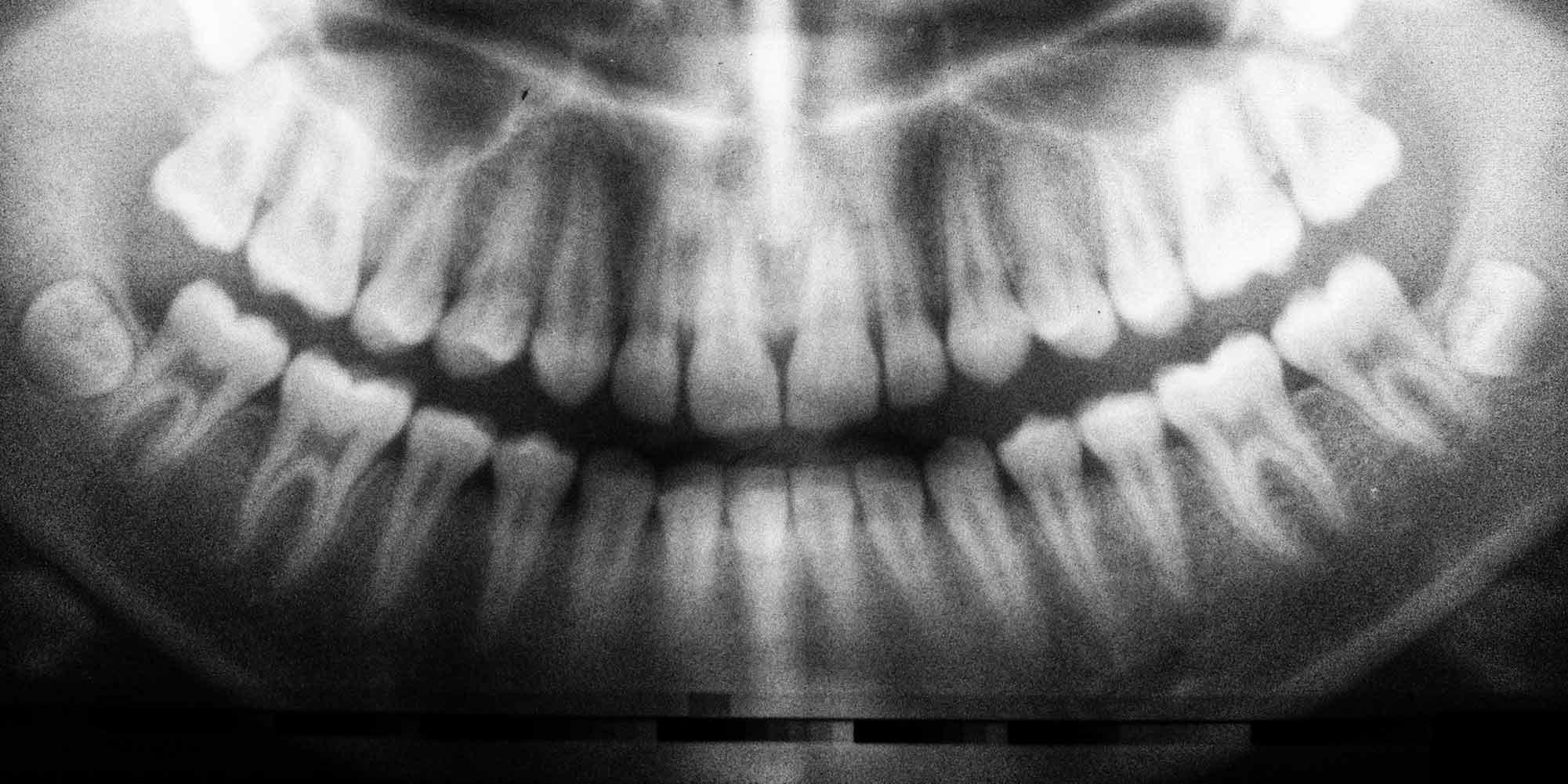 Zahnarzt Praxis Neubrunn Röntgenbild